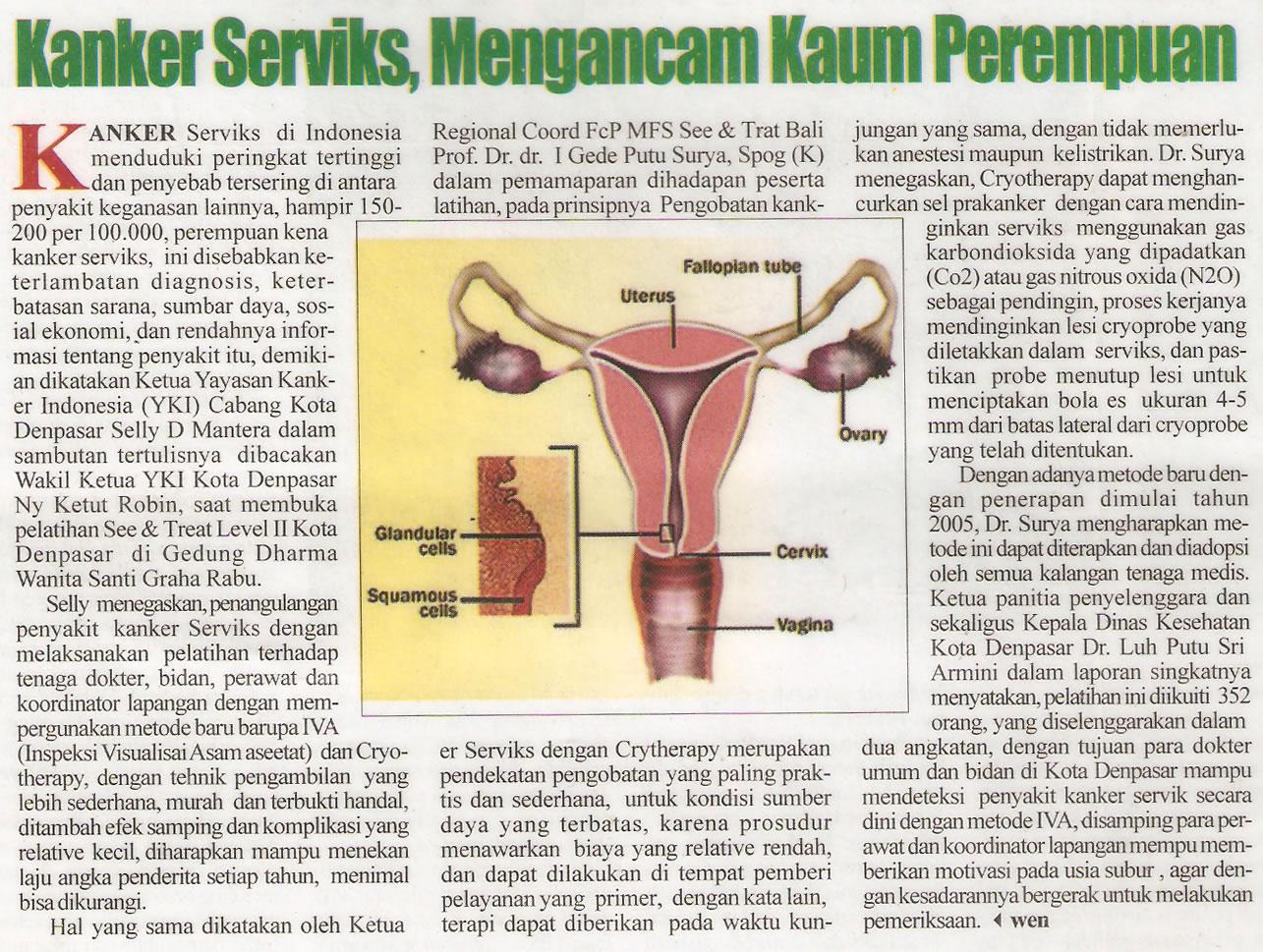 Kanker servik mengancam kaum wanita